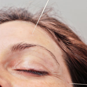 What Is An Acupuncture Face-Lift?